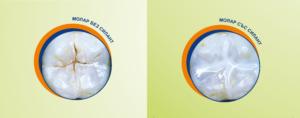 Силанти преди и след поставянето им